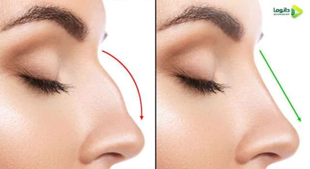 قبل و بعد از عمل بینی