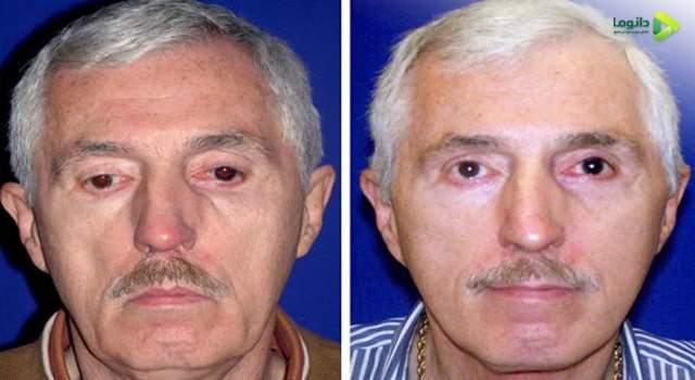 قبل و بعد از عمل لیفت صورت